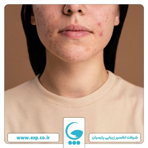 عامل متعدد در چرب شدن پوست